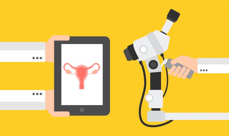 Colposcopia: identifique o câncer de colo do útero